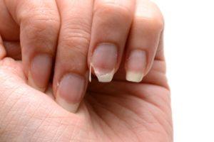 К чему ломается ноготь: примета для каждого пальца