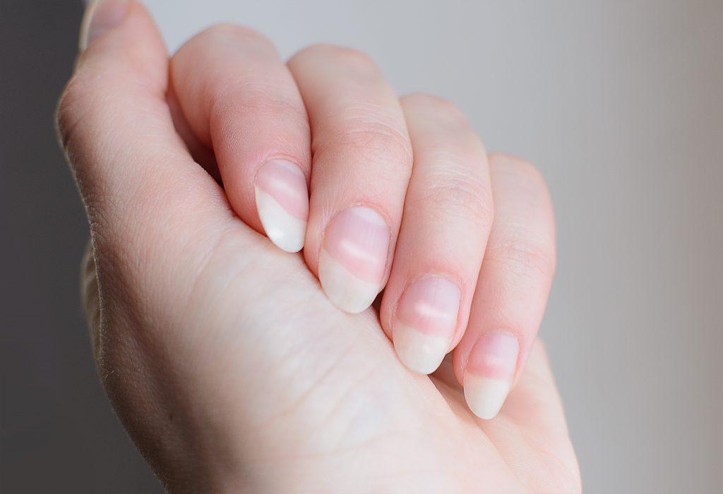 Что означают белые пятна на ногтях по приметам