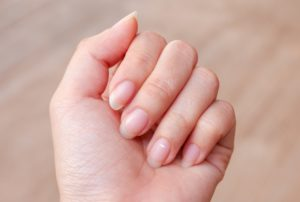 К чему появились белые пятна на ногтях - это дурной знак?